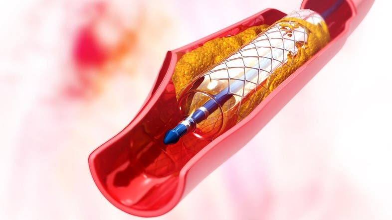 An illustration picture of a stent implanted in the artery to restore blood flow. (Shutterstock)